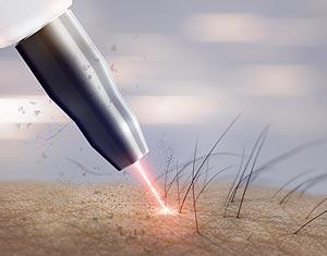 conseils épilation laser